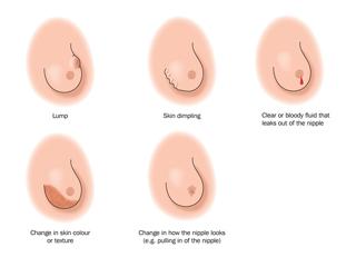 secretario vaginal